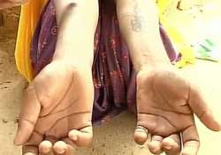 Woman gangraped by husband, in-laws; tattooed with