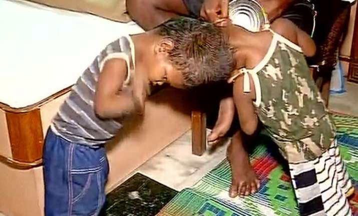 Condition of conjoined twins from Odisha 'critical' after