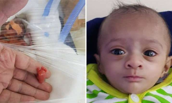 Meet Manushi, Asia's smallest surviving baby at just 400 gms