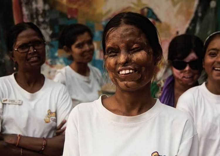 Acid attack victims to find a career in tattoo art- India Tv