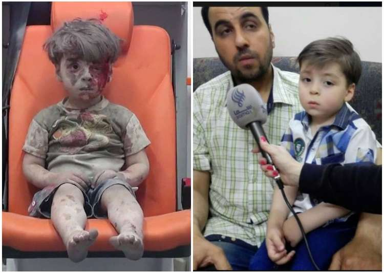 omraan daqneesh syria aleppo- India Tv