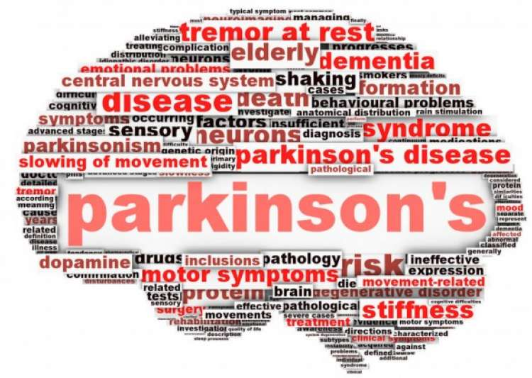 Statins can bring out hidden Parkinson's disease