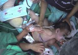 chile girl dies after surgery split her from conjoined twin