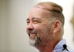 first skull scalp transplant performed by us doctors