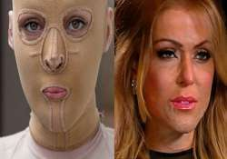 dana vulin fire attack victim reveals her face to the world