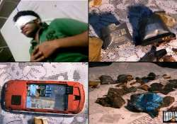 delhi youth nearly blinded in cell phone blast
