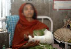 doctor to pay rs 2.75l to woman for loss of her forearm