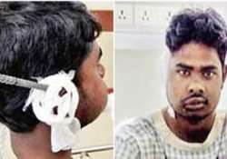 pune worker survives after rod pierces through his ear mouth