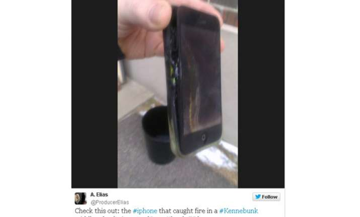 us teen suffers burns as iphone suddenly catches fire in