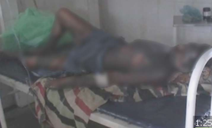 tribal youth set on fire in mp