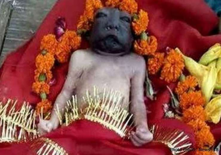 Deceased baby with a birth defect hailed as 'Maa Kali' in UP village ...