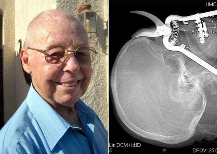 us man impaled through eye socket by pruning shears- India Tv