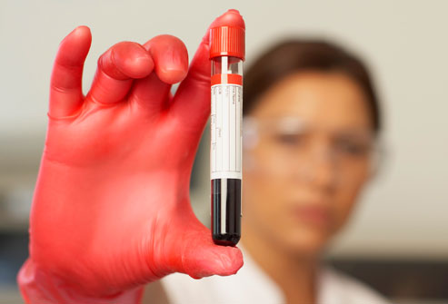 blood test can detect blood cancer five yrs early