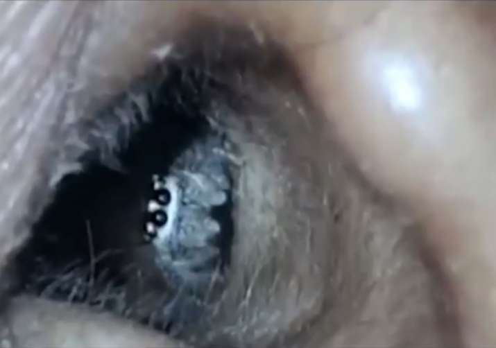 live spider crawls out of womans ear