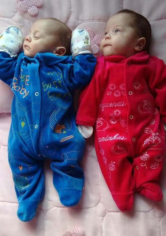 India Tv - Twins born were as healthy as any premature baby of their age
