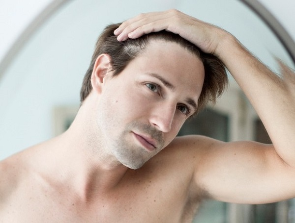 male pattern baldness heart disease