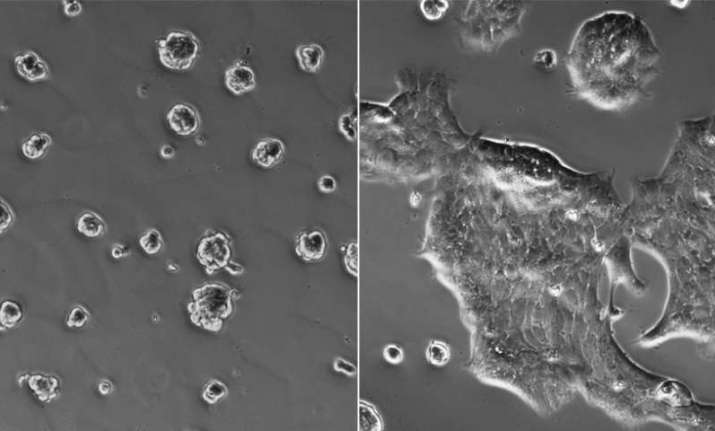Lack of oxygen at a tumour's core may develop cancer cells