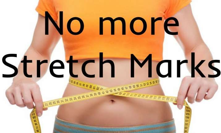 Want to get rid of stretch marks? Follow these easy four