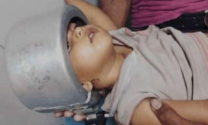 Cooker stuck in girl's head