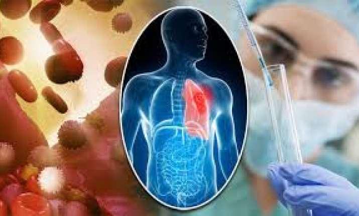 Scientists develop new technique to fine-tune cancer