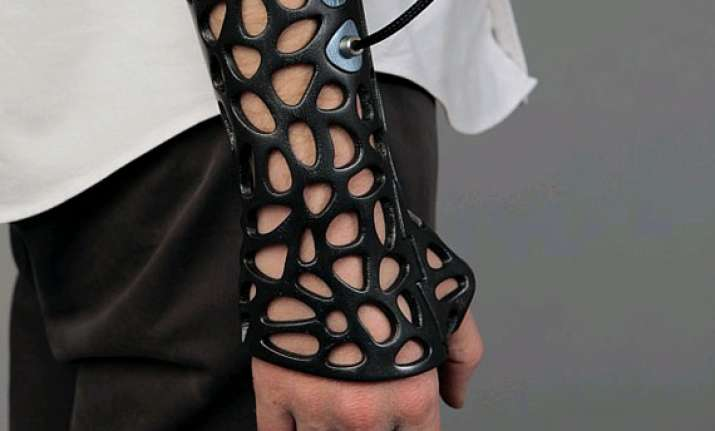 3d printed plaster cast that reduces healing time by 40