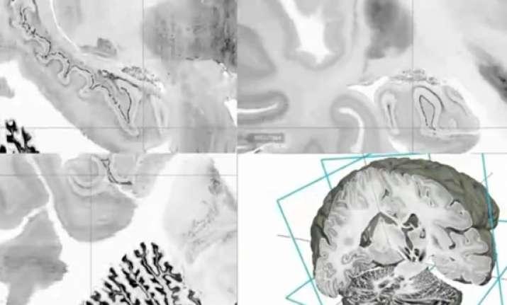 scientist develop digital 3d atlas of the brain