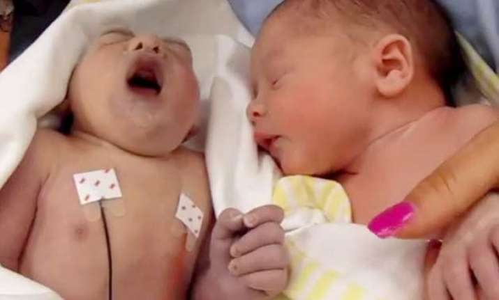 100 minute old baby teddy turns saviour donates kidneys and