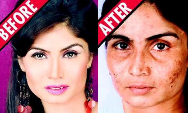 shilpa in a soup over botched skin treatment