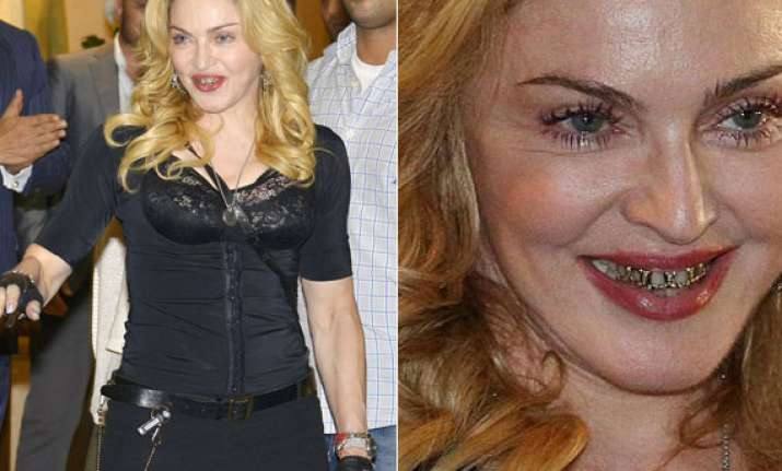 omg madonna looks horrifying in those gold grills
