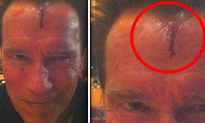 schwarzenegger bruised and battered shooting movie