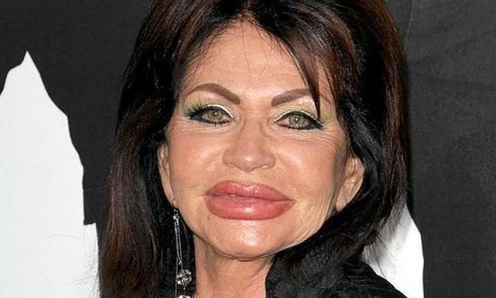 surgery has left me look like chipmunk jackie stallone
