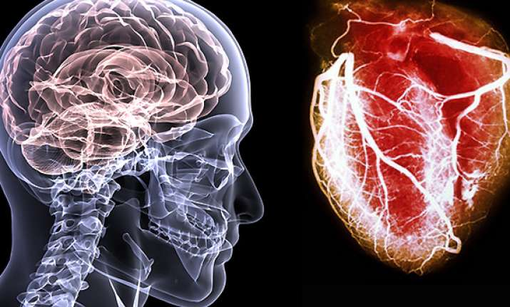 brain attacks as serious as heart attacks expert