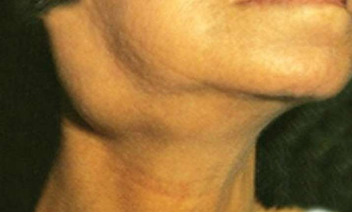 swollen neck glands may indicate cancer