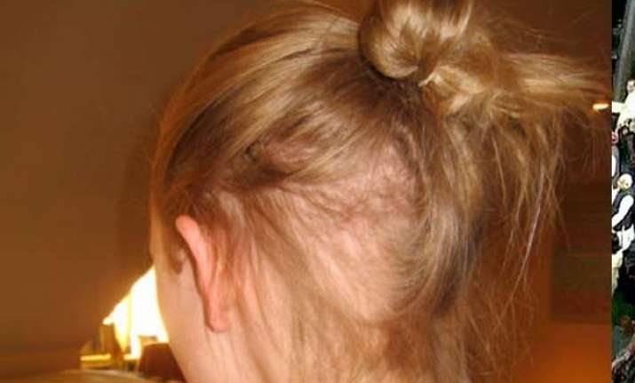 get bored easily you are prone to chronic hair pulling