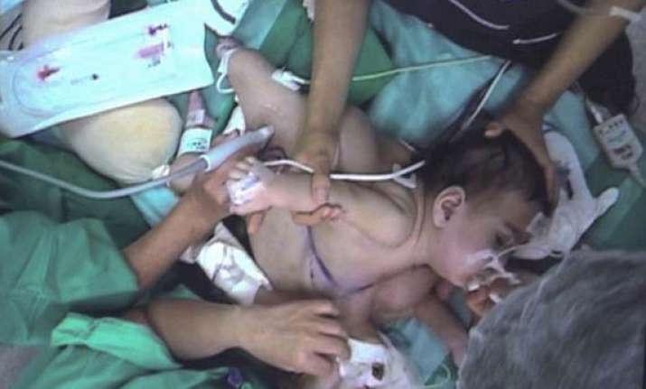 conjoined twin girls in chile separated after 18 hour