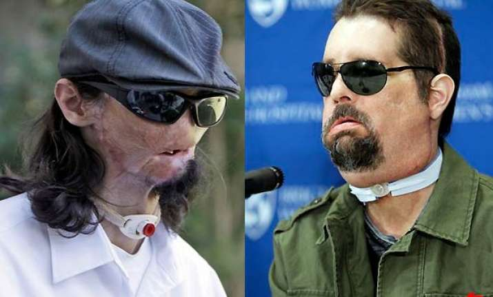 first full face transplant in us