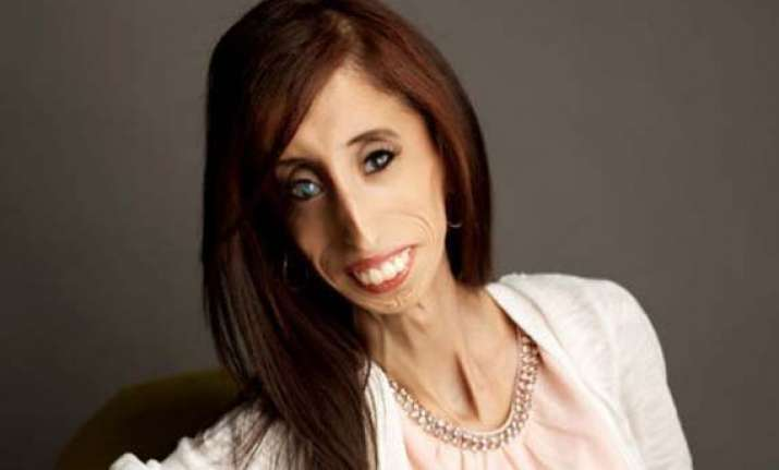 lizzie vel squez the girl once labeled world s ugliest woman