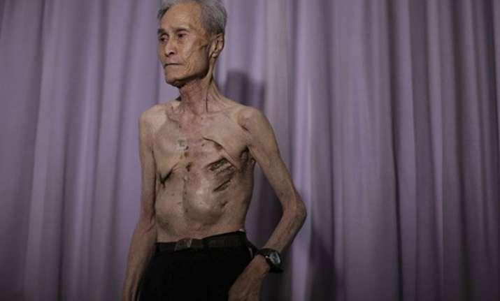 in pics nagasaki atomic bomb survivor shows his scars
