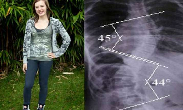 uk girl with curved spine does breakdance after undergoing