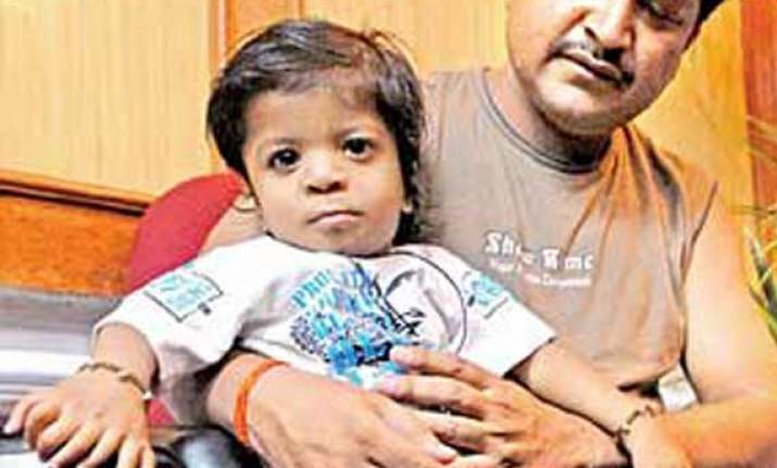 bareilly boy with 34 fingers and toes sets new record