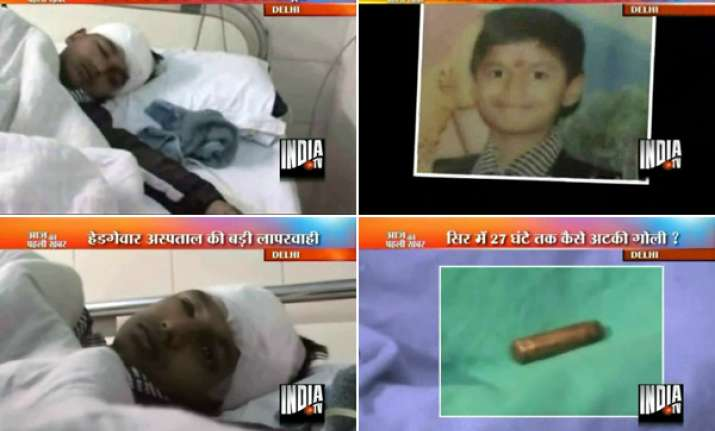 delhi docs extract bullet from kid s skull after 27 hours