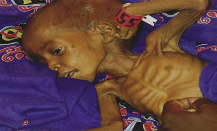 india has 40 per cent of world s malnourished expert
