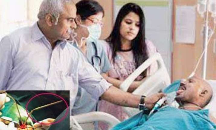 delhi doctors save worker after rod pierces his brain