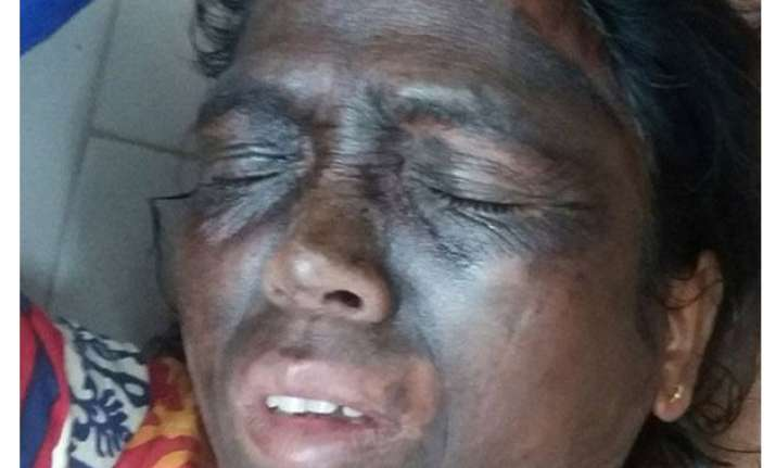 acid like substance rubbed on tribal activist soni sori s