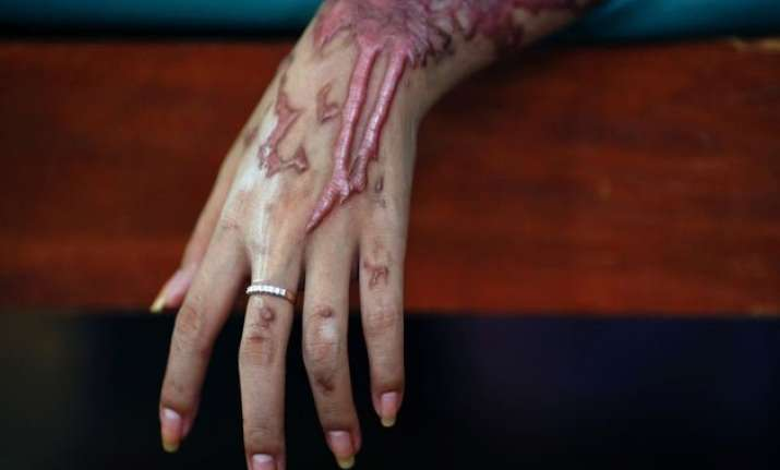 centre to states give compensation to acid attack victims