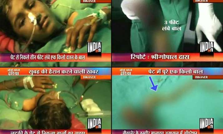 one kg ball of hair extracted from bikaner girl s stomach