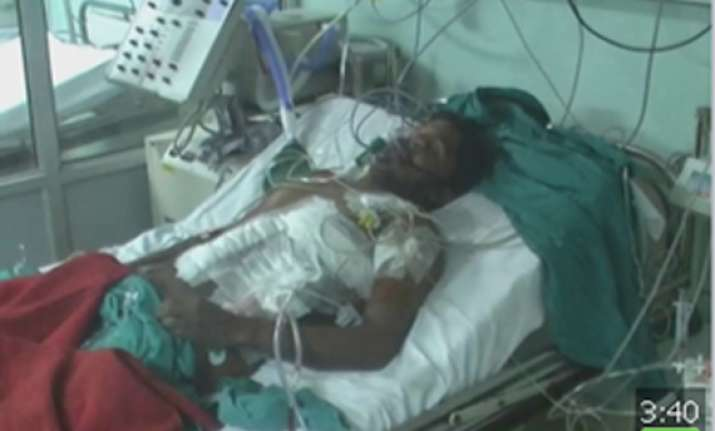 pgi rohtak doctors save man after two iron rods pierced his