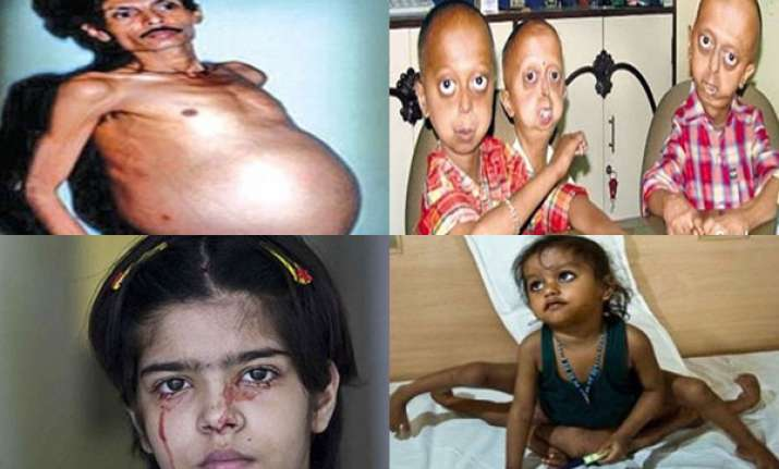 ten big medical anomalies afflicting indians