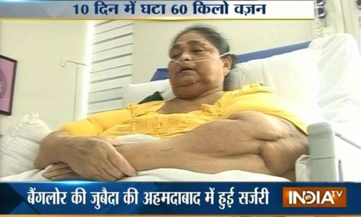 weight loss surgery gives a new life to bangalore woman