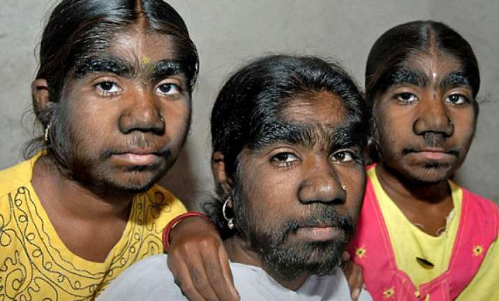 werewolf syndrome sangli sisters covered with hair want